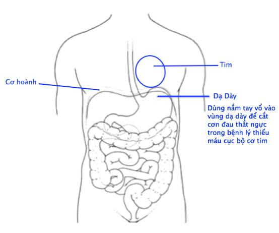 Chữa cơn đau thắt ngực
