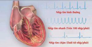 Dinh dưỡng cho người rối loạn thần kinh tim
