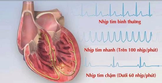 Dinh dưỡng cho bệnh nhân rối loạn thần kinh tim