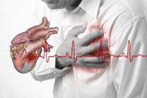 Cơn đau thắt ngực Nguyên nhân và triệu chứng
