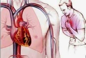 Cách xử lý cơn đau thắt ngực