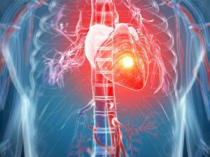 Cơn đau tim nguyên nhân biểu hiện và điều trị